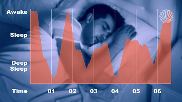 آنالیز دادههای خواب بیماران برای مراقبتهای بهداشتی